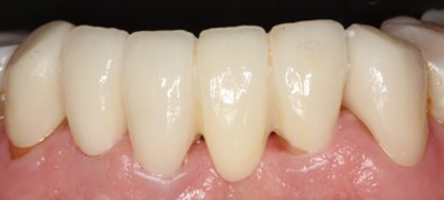 After-DentalBridges