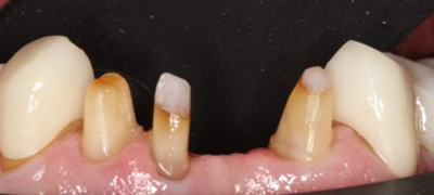Before-DentalBridges
