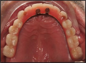 After-Case1ImplantBridge